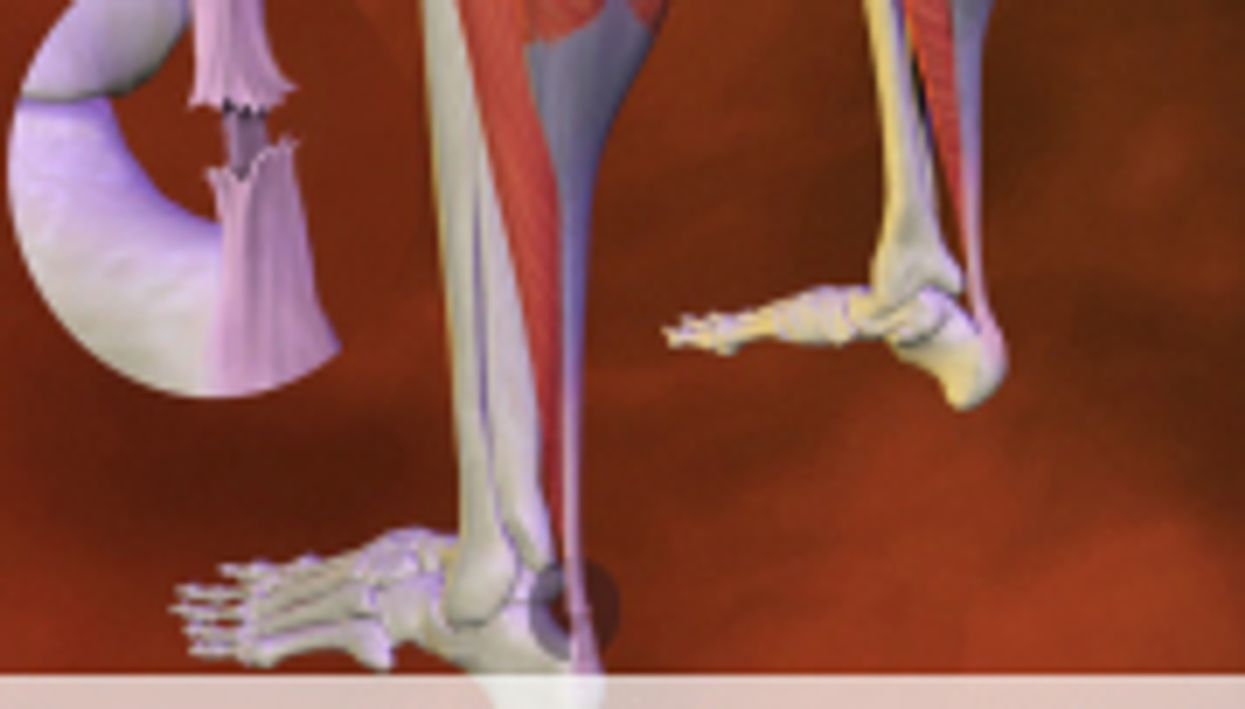 RSNA: Platelet Rich Plasma Treatments Benefit Tendinosis