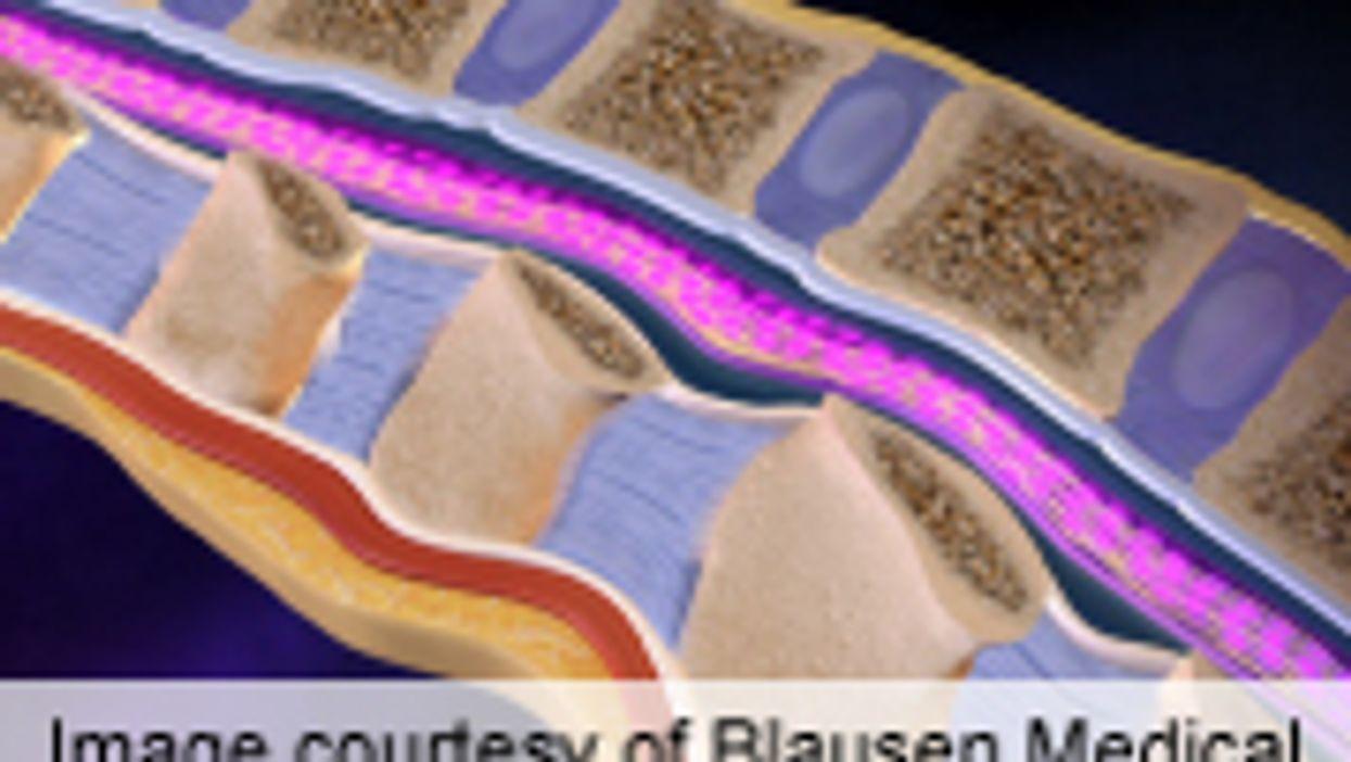 'Milestone' Therapy Produces Leg Movement in Paraplegics
