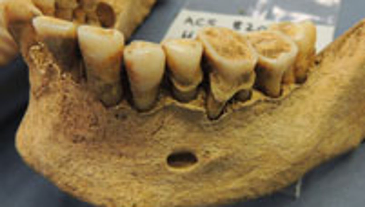 Human Teeth Healthier in the Stone Age Than Today: Study