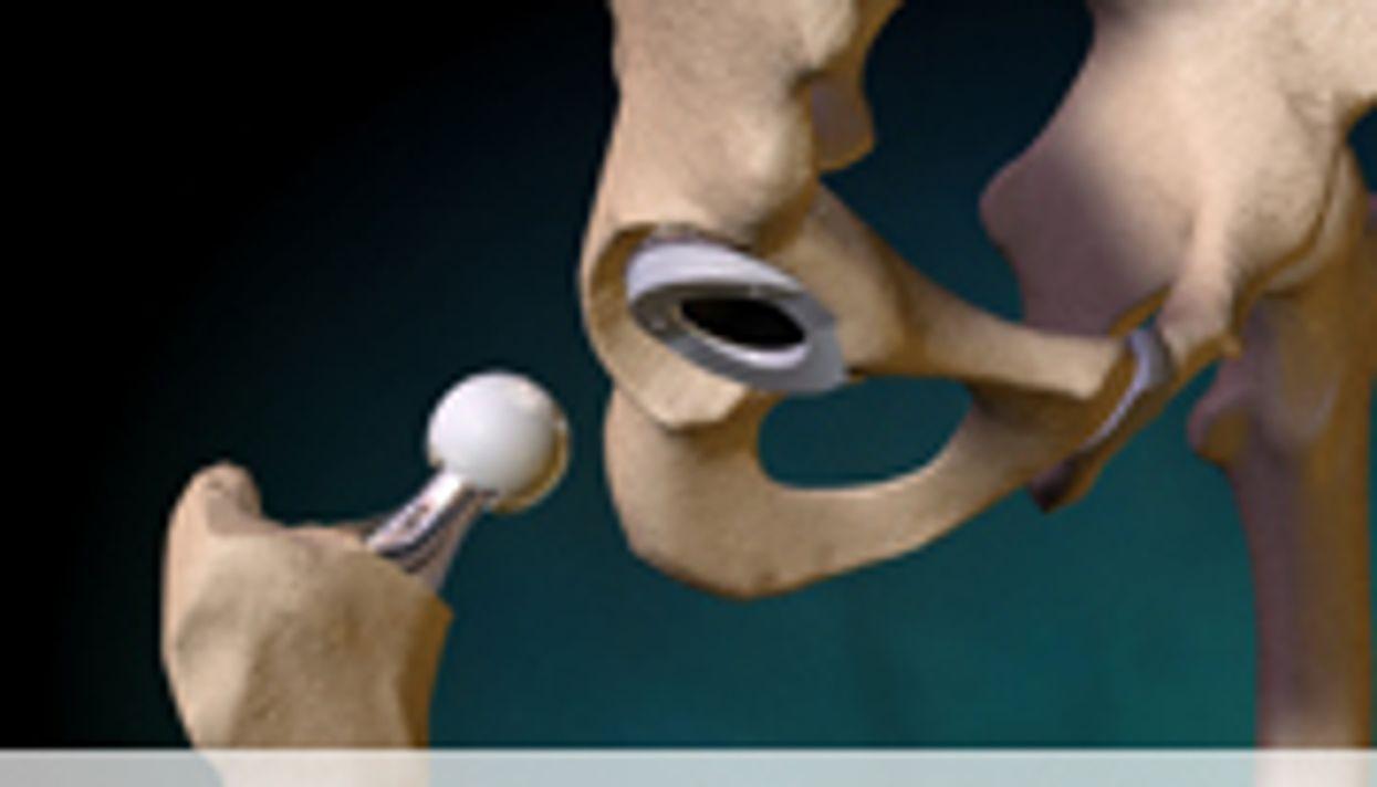 Higher Risk of Hip Implant Failure for Women Than Men