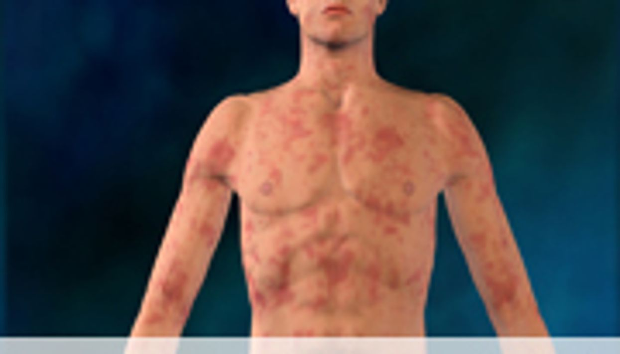 AAAAI: Omalizumab Treatment Effective for Urticaria