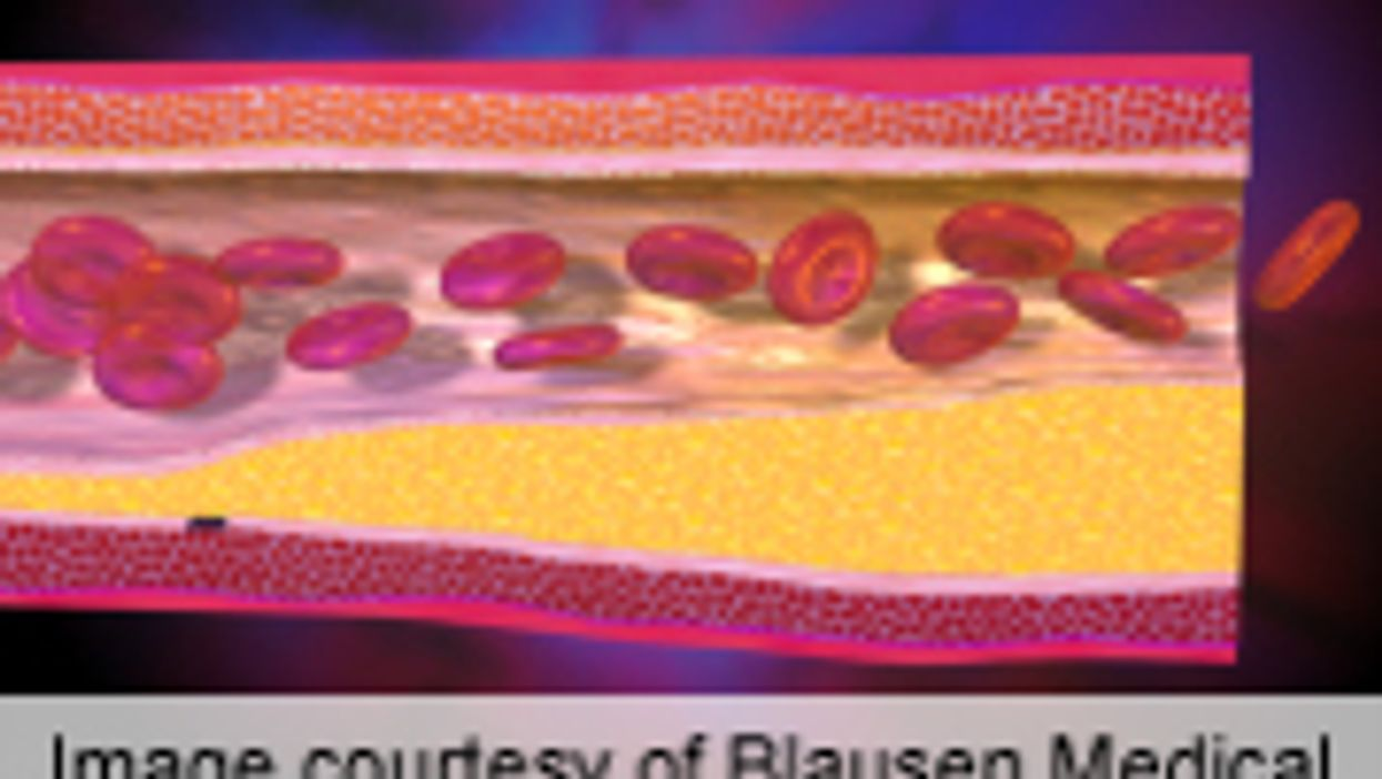 Niacin-Statin Combo May Cause Side Effects for Heart Patients