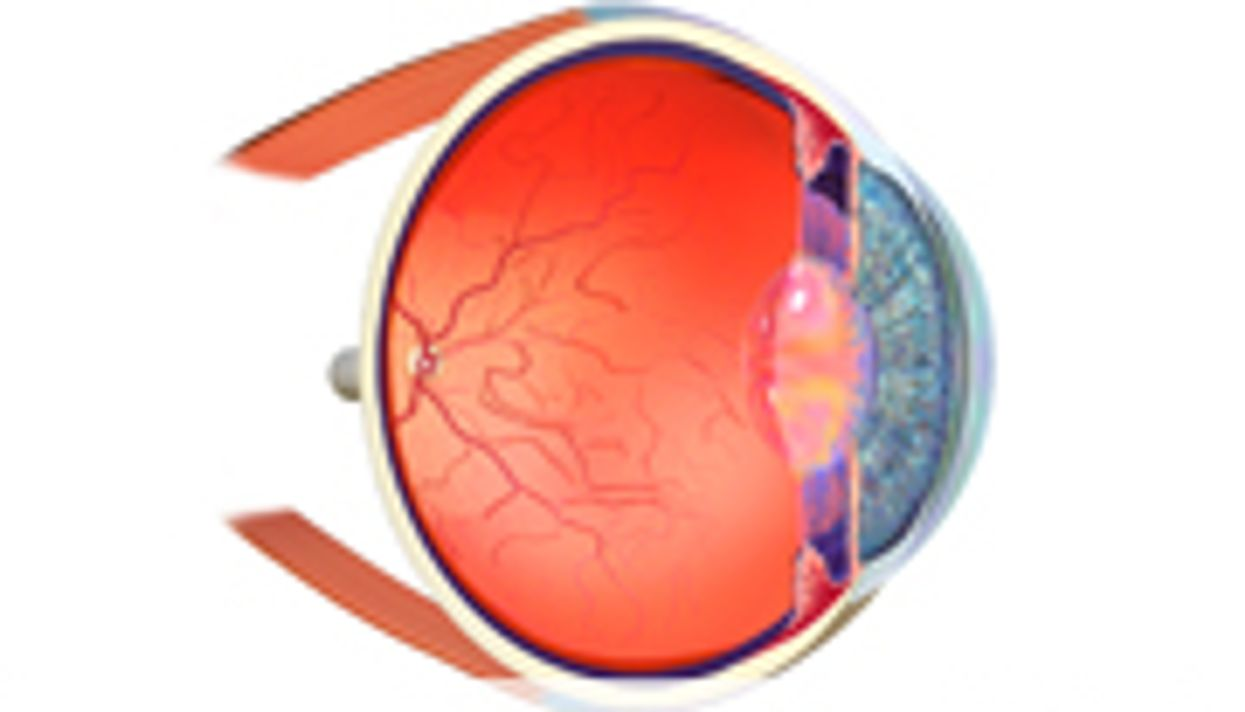 Ocular Complications Common After Pediatric HSCT
