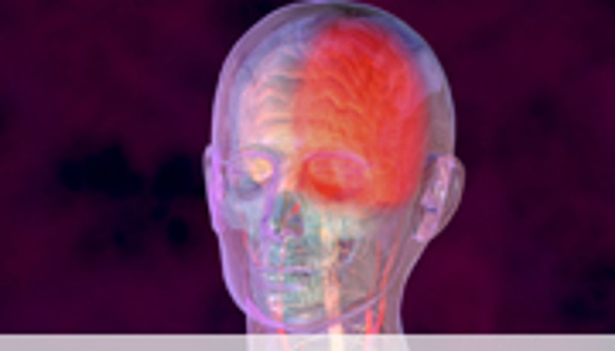 AAN: Migraine With Aura Ups Clot Risk for Combo Contraceptives