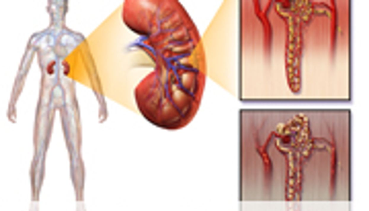Creatinine Excretion Rate Linked to Higher Mortality in T2DM