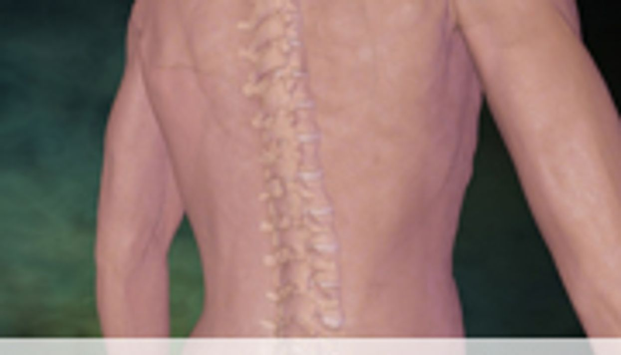 Model Can Predict Spine Surgery Complications