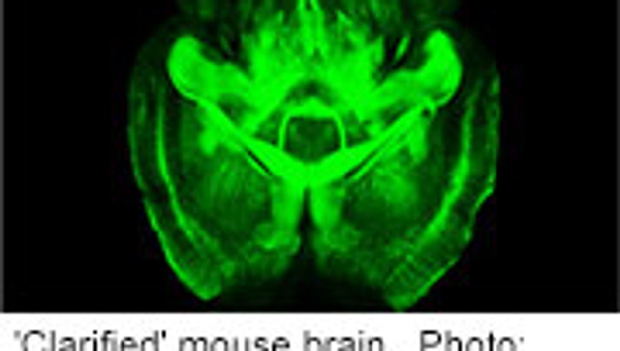 'Transparent' Mouse Brain Could Shed Light on Human Brain Health