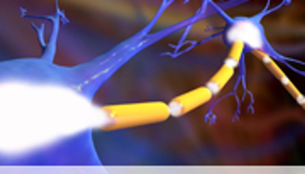 New Myelin Loss Linked to MS Severity: Study