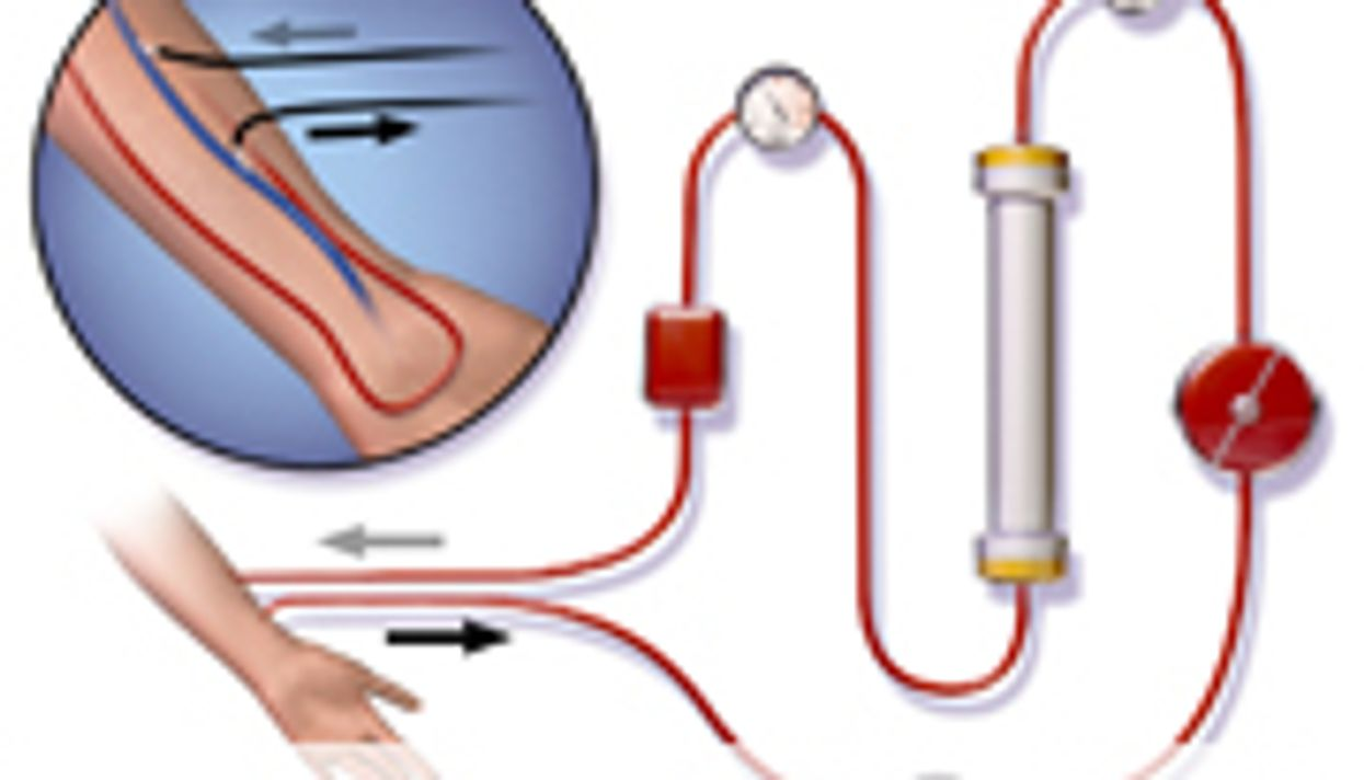 Patient-Doctor Contact Betters Hemodialysis Outcomes