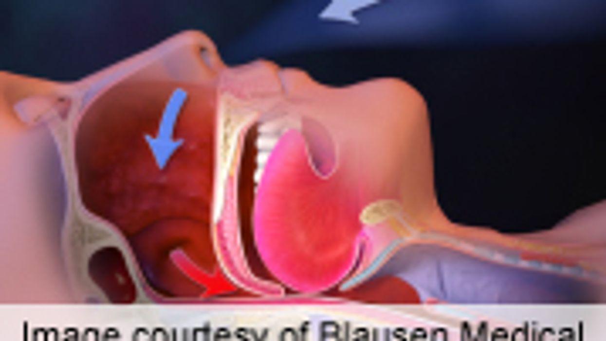 Obstructive Sleep Apnea Ups Risk of Barrett's Esophagus