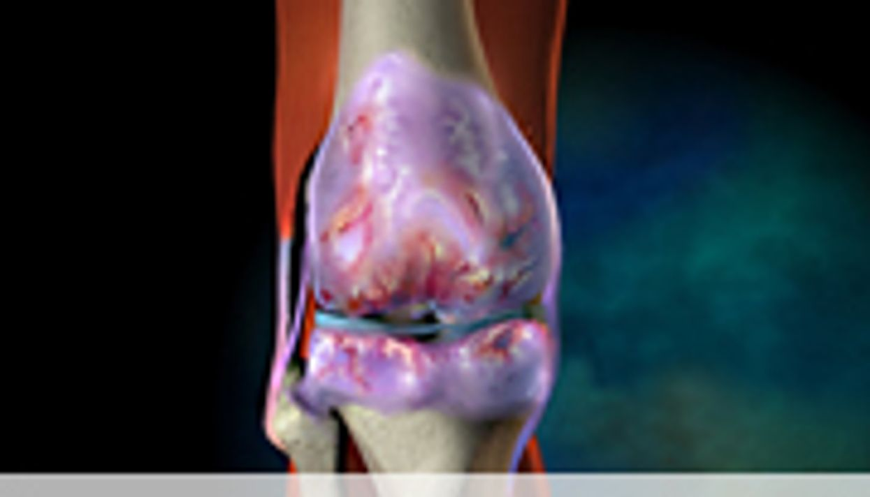 AAOS: Risk Factors ID'd for Post-Knee Replacement Pain