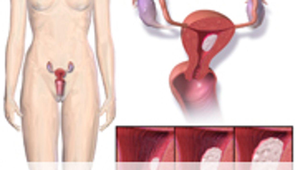 Certain Bisphosphonates Tied to Lower Risk of Endometrial CA