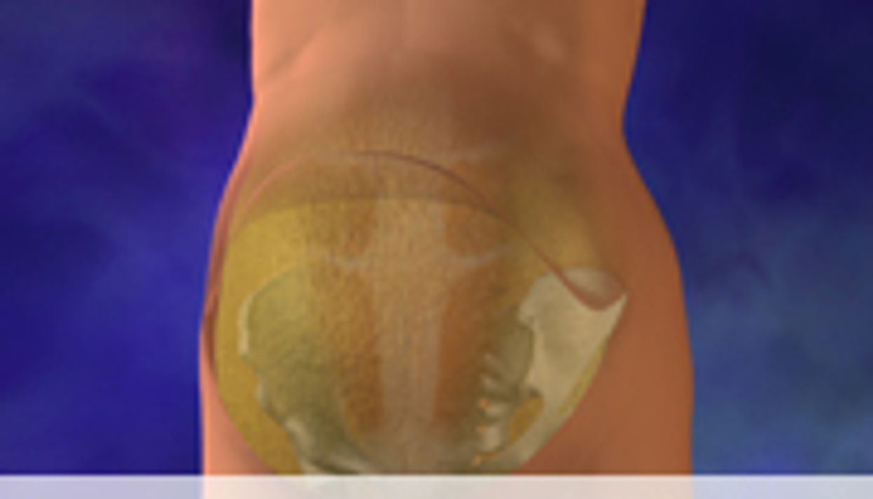 Combined Liposuction  Abdominoplasty Deemed Safe