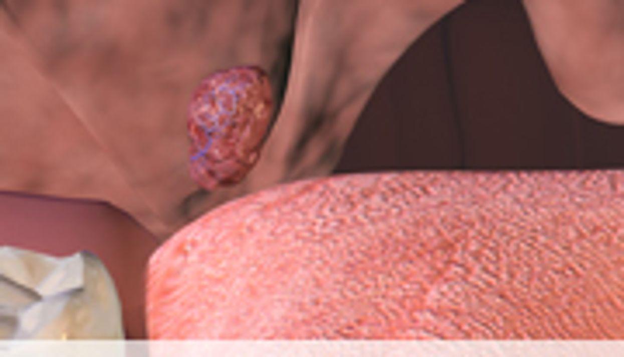 Residual Sleep Apnea Common After Adenotonsillectomy