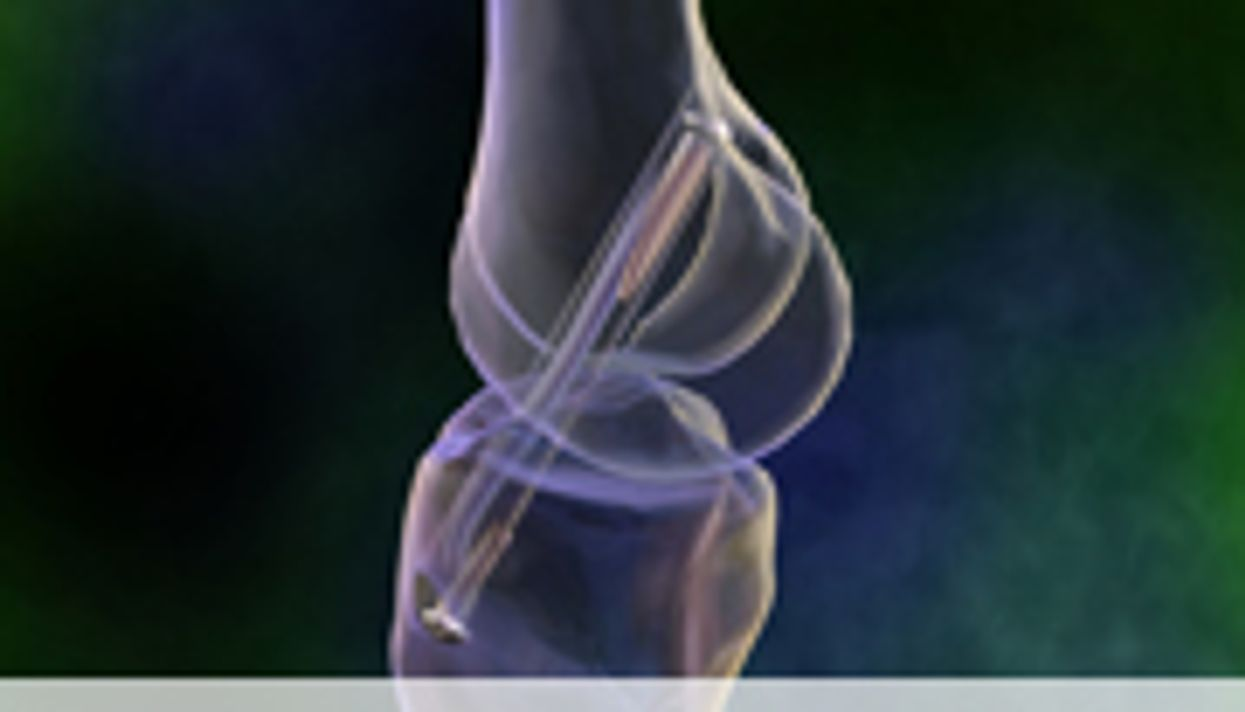 Knee Shape May Predict Who'll Benefit From ACL Surgery, Study Says