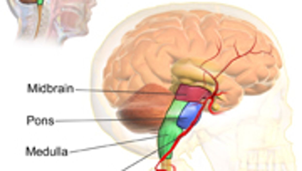 Stroke Can Cause Sleep Apnea in Some Patients