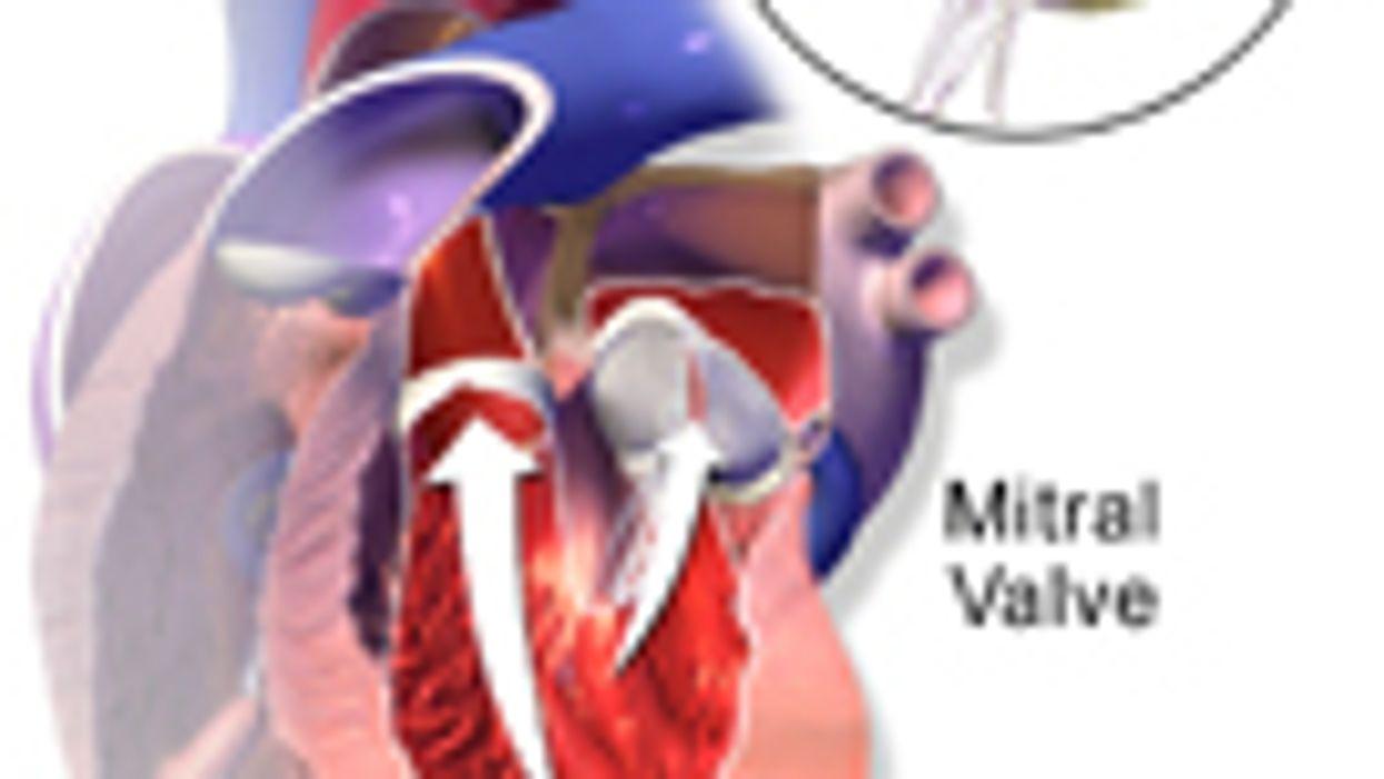 Guidance for Transcatheter Mitral Regurgitation Treatment Issued