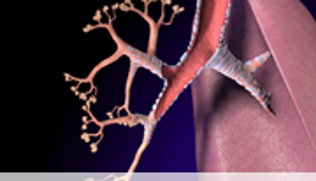 Post-Op Pneumonia Prevention Program Effective