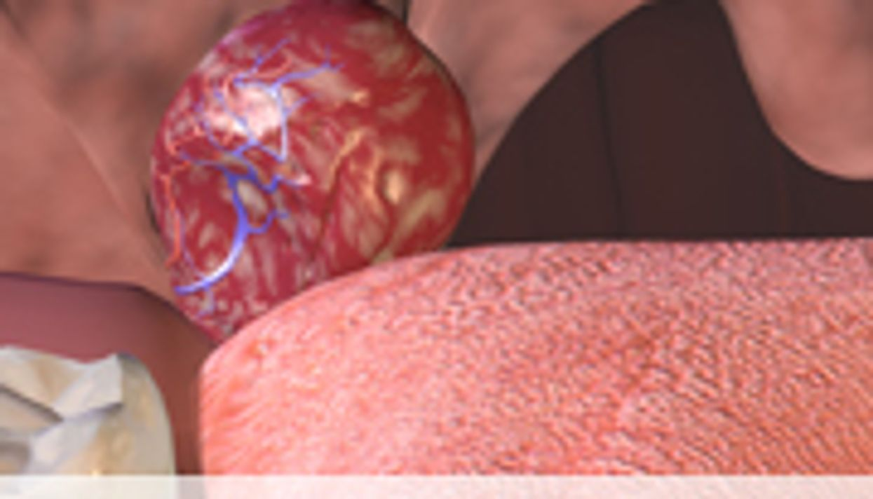 Greater Weight Gain After Early Adenotonsillectomy for OSA