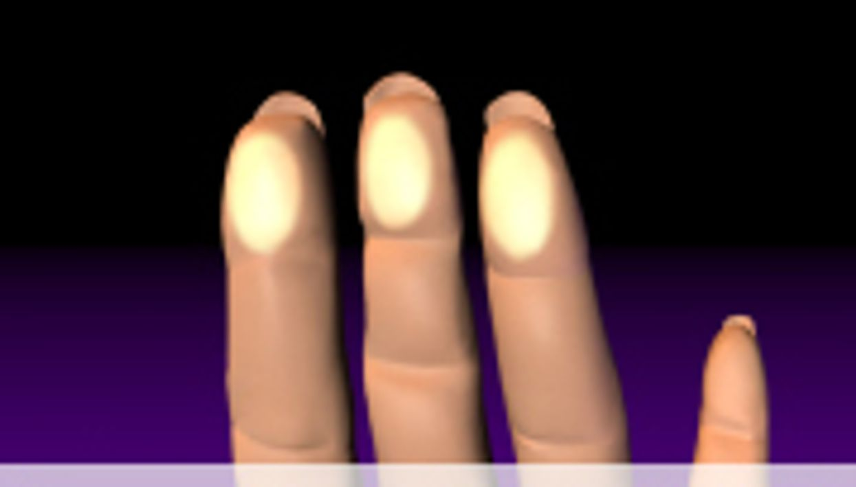 Cold Effects on Skin in Raynaud's Impacted by Age, BMI