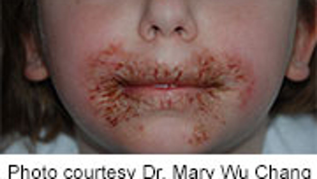 Preservative in Baby Wipes Linked to Rashes in Some Children