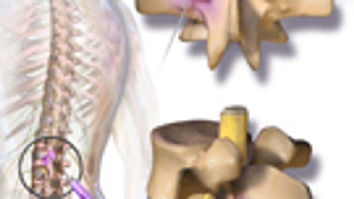 Intra-Articular, Systemic Steroids Beneficial in Back Pain
