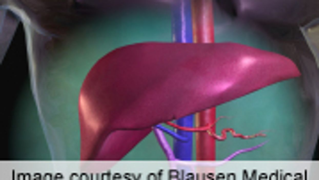 Non-Interferon Regimen Found Effective for Hepatitis C