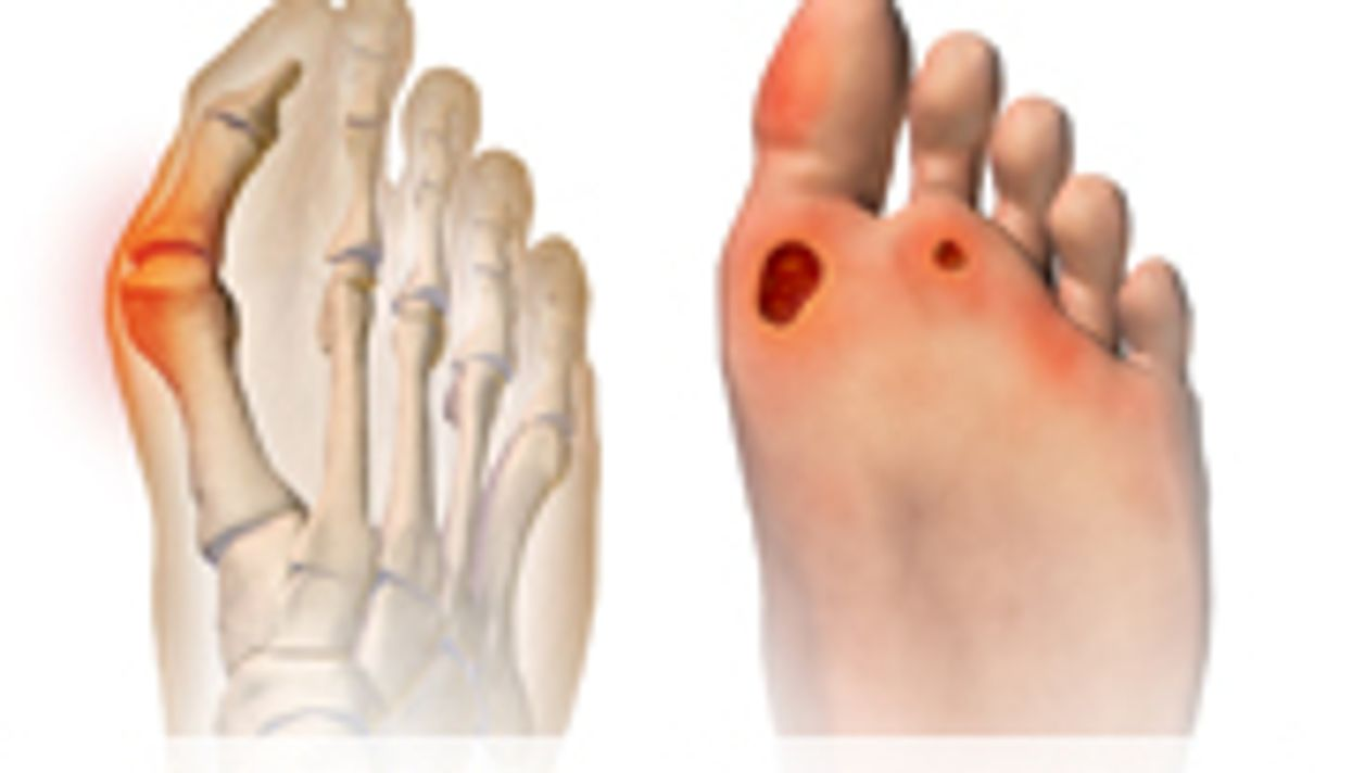 Plantar-Pressure Based Orthoses Reduce Foot Ulcer Recurrence