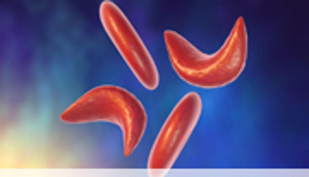 ASN: Sickle Cell Trait Linked to Risk of Chronic Kidney Disease