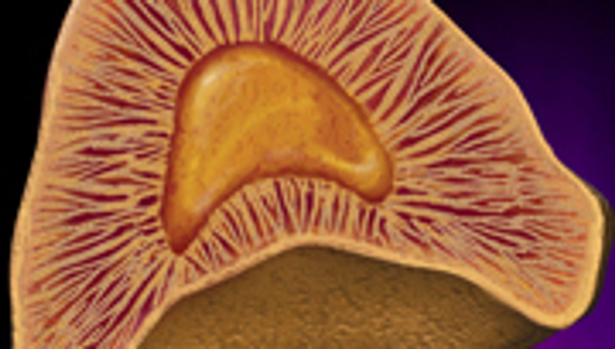 Study IDs Cardiovascular Risk for 'Silent' Adrenal Tumors