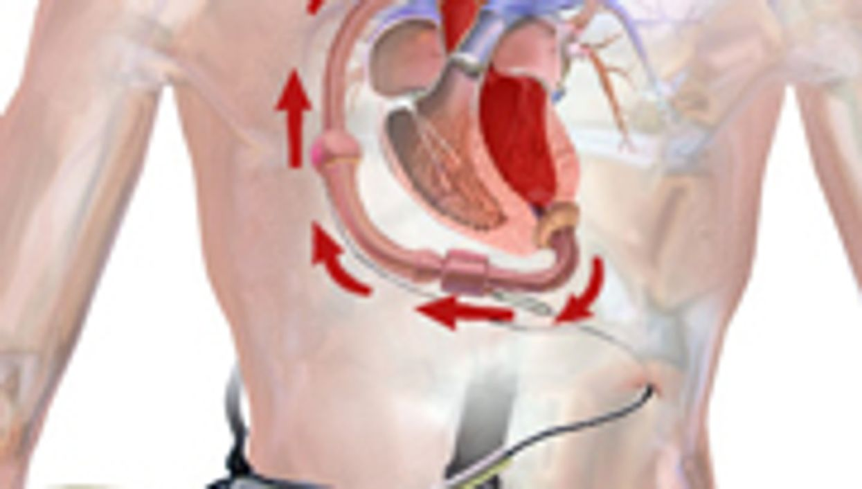 Improved Outcomes Seen With Ventricular Assist Devices