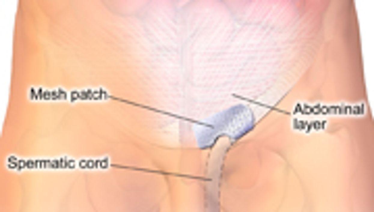 Mesh Ventral Hernia Repair Has Lower Recurrence Rate