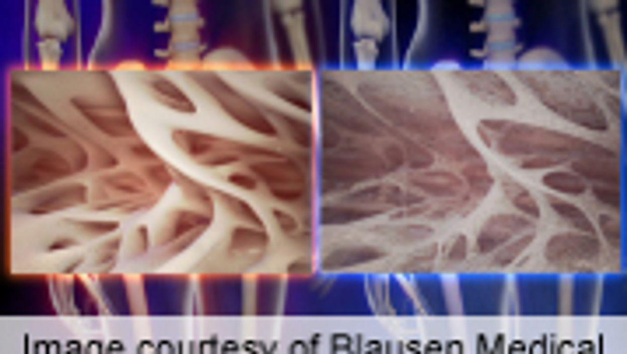 Obstructive Sleep Apnea Linked to Osteoporosis