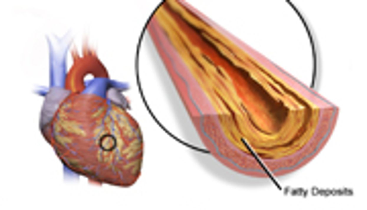 BMI Linked to Coronary Plaque in Asymptomatic Diabetes