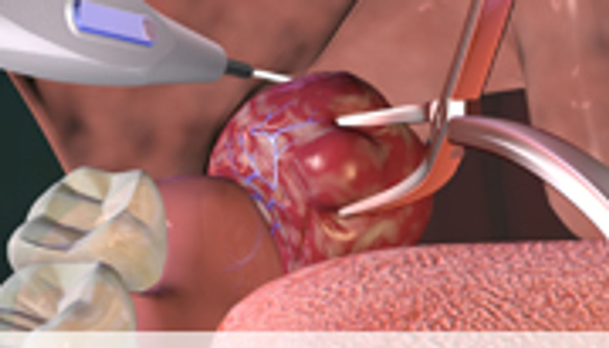Complications for One in Five Adults Undergoing Tonsillectomy