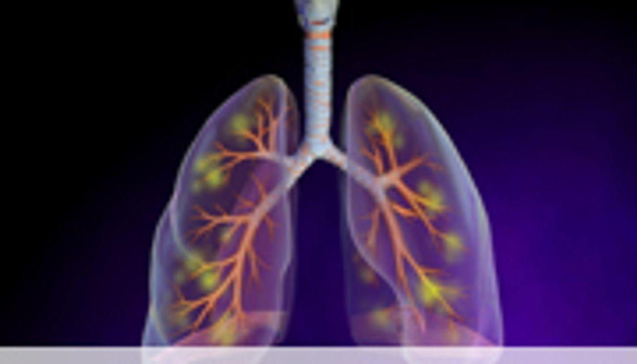 ESPID: Ultrasound, X-Ray Similar for ID'ing Pediatric Pneumonia