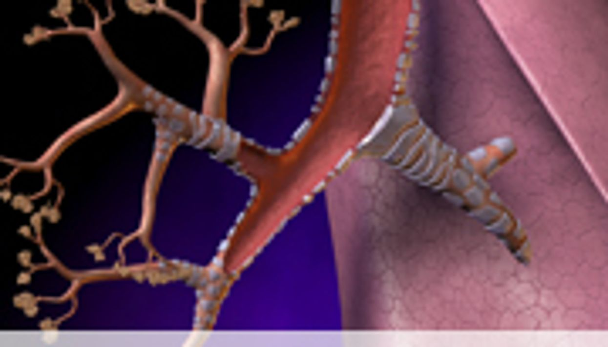 Docs Still Prescribing Antibiotics for Acute Bronchitis