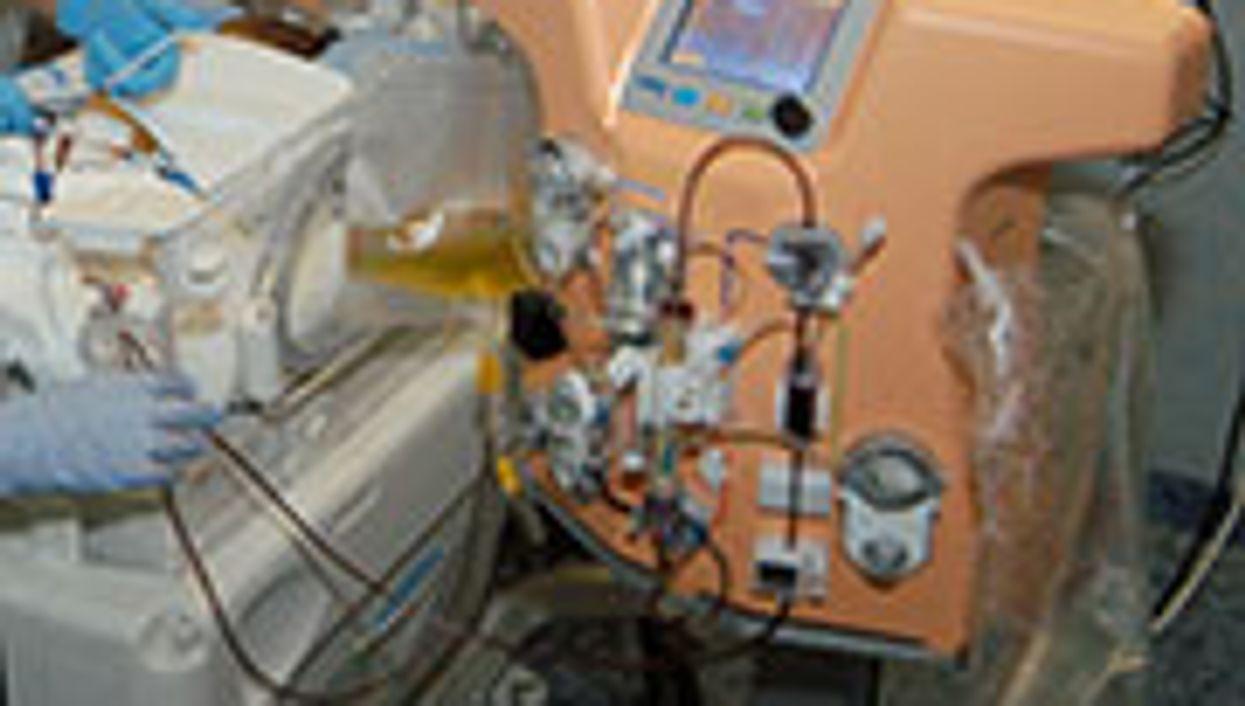 New Dialysis Machine Treats Tiniest of Newborns