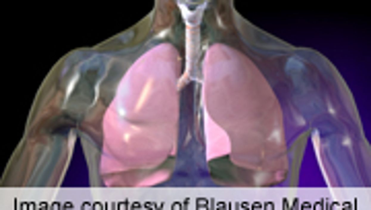 Lung Infections May Hamper Ability to Detect Lung Cancer