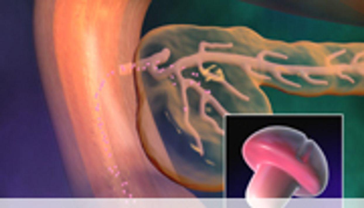 Optimal Screening Cut-Off ID'd for GDM in Twin Pregnancies