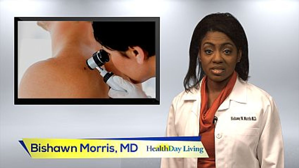 How to Do a Skin Cancer Body Check