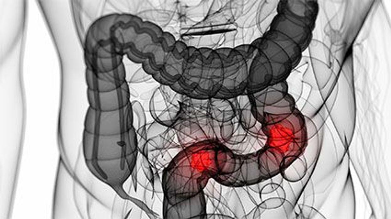 El cáncer del colon en los adultos jóvenes