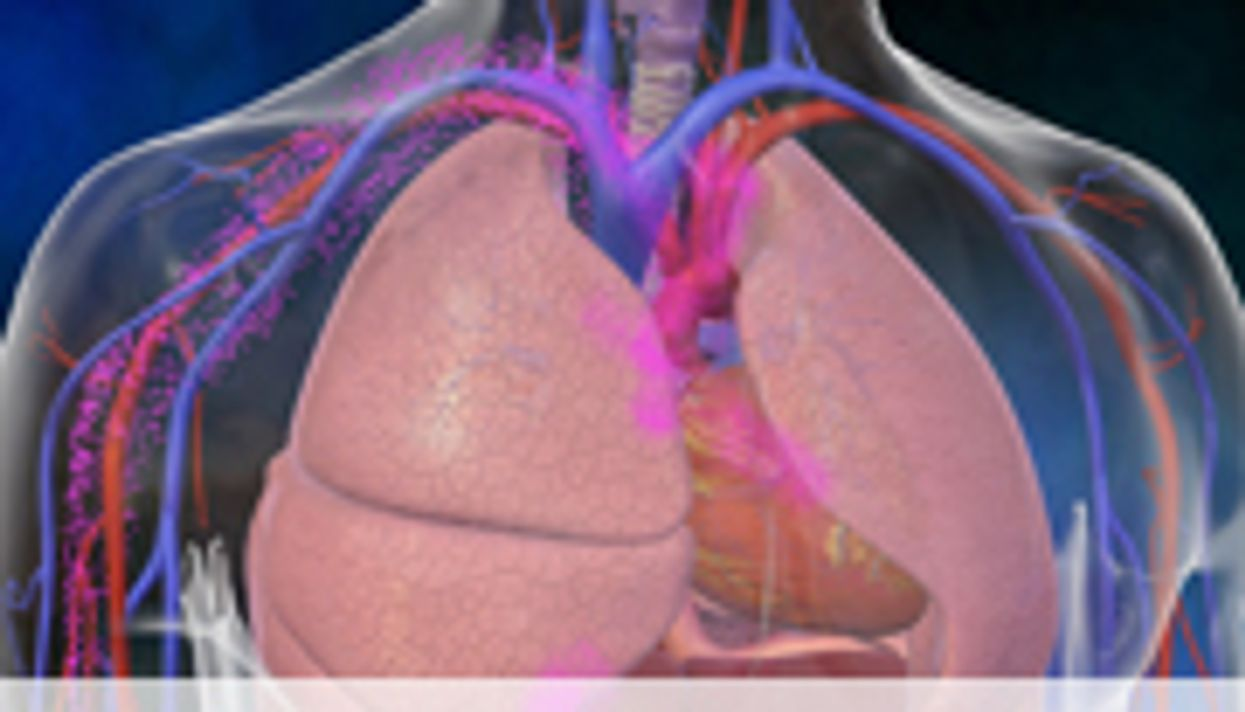 High Yield With Radiologist Recommendation for Chest CT