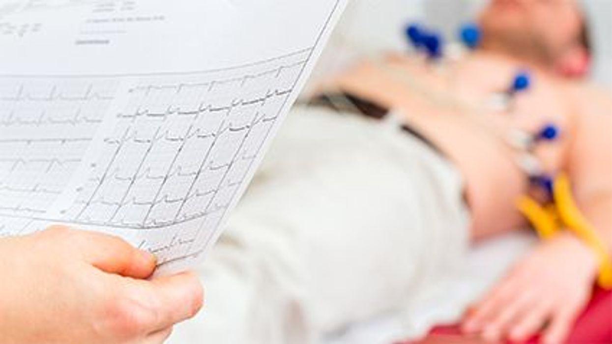 Debate sobre el electrocardiograma