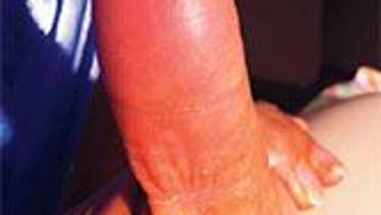 Chemo for Breast Cancer Erases Woman's Fingerprints