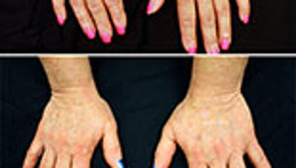 Drug for Rheumatoid Arthritis May Also Help Ease Vitiligo