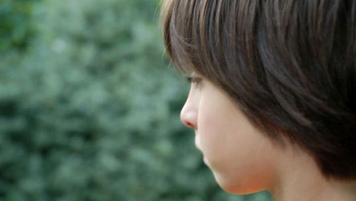 Brain Scans Yield More Clues to Autism