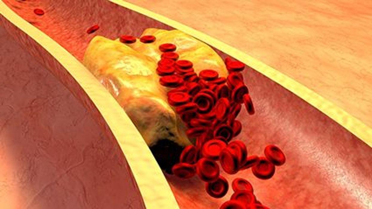 Peligros del colesterol en los adultos jóvenes