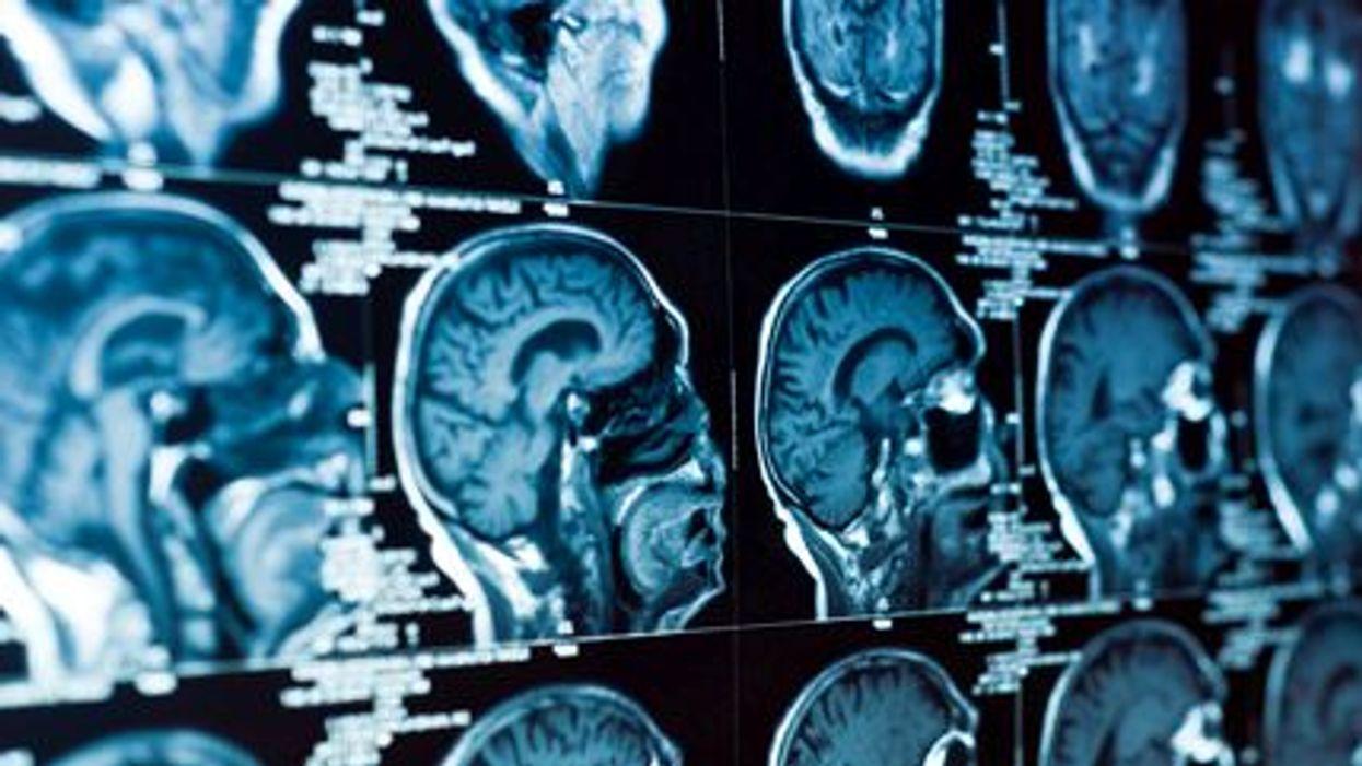 La recuperación de la conmoción cerebral y el aprendizaje