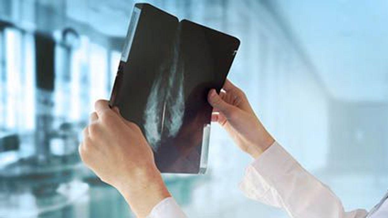 El cáncer de mama y las pruebas genéticas